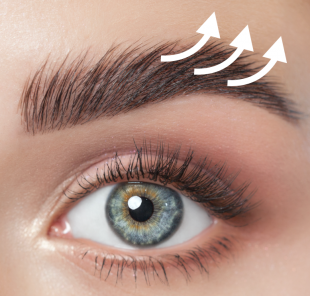Brow Lifting / Augenbrauenlifting