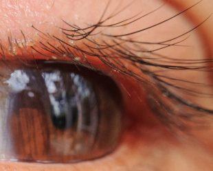 Ist Dein Auge von einer Blepharitis betroffen, wachsen Dir zusätzliche Wimpern am Augenlid.