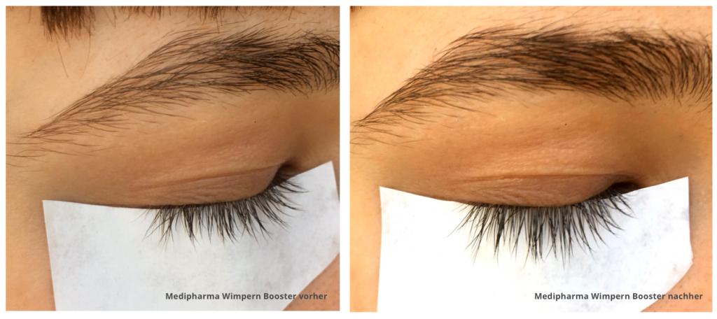Medipharma Cosmetics Wimpern Booster vorher nachher