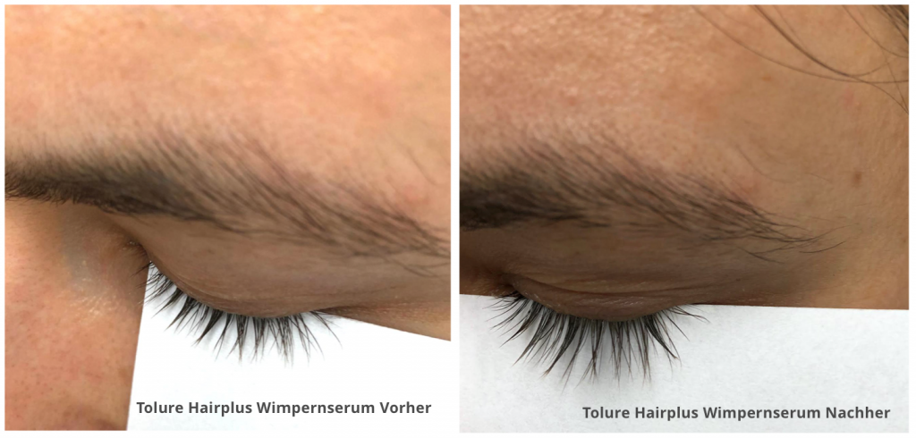 Tolure Hairplus Wimpernserum Test vorher nachher