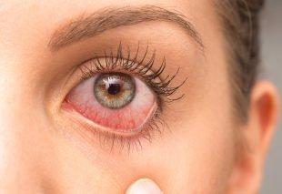 Wimpernkleber Allergie/ gereizte Augen